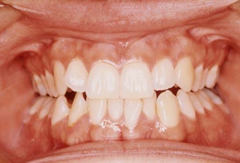 How To Keep My Teeth White And Drink Coffee